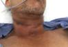 Hy hữu: Người đàn ông bị dây diều cắt đứt khí quản
